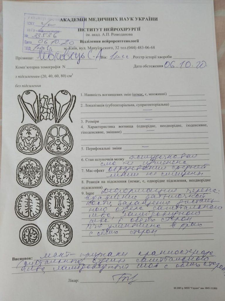 Святослав Левковець хворіє на краніостеноз